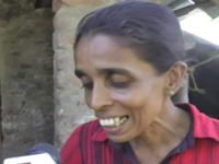 Mother suffering from malnutrition